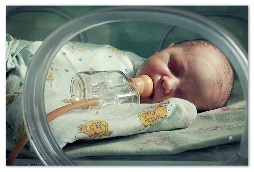 Повышенное содержание билирубина в крови у недоношенных детей