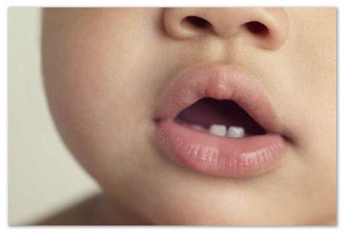 Первые зубы