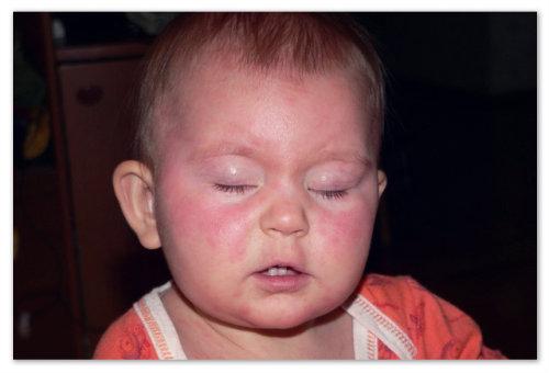 Розеола у ребенка