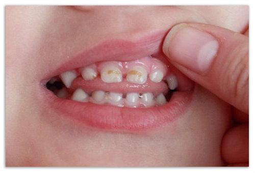 Кариес на зубах ребенка.