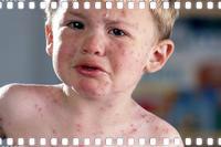 Причины красной сыпи у детей.