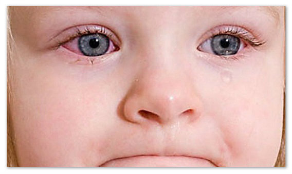 Симптомы аллергического конъюнктивита.